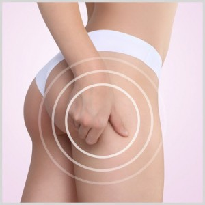 Cellulite Reduction - Avant Aesthetics