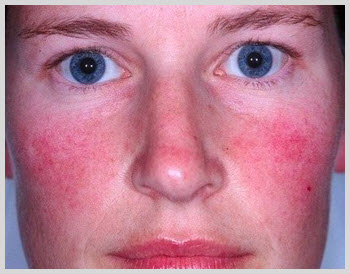 Rosacea Treatment Avant Aesthetics Clinic