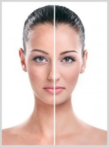 Skin Rejuvenation Treatment - Avant Aesthetics