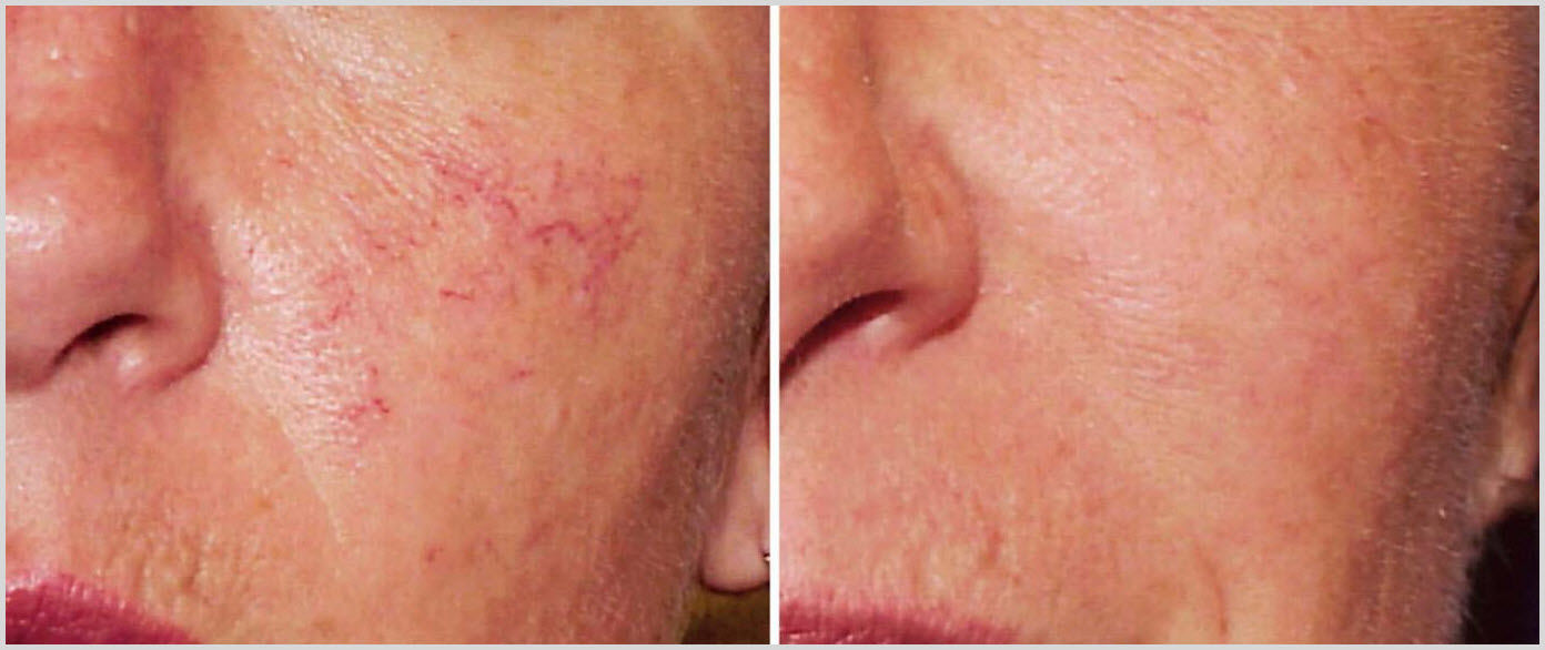Facial spider vein removal consider